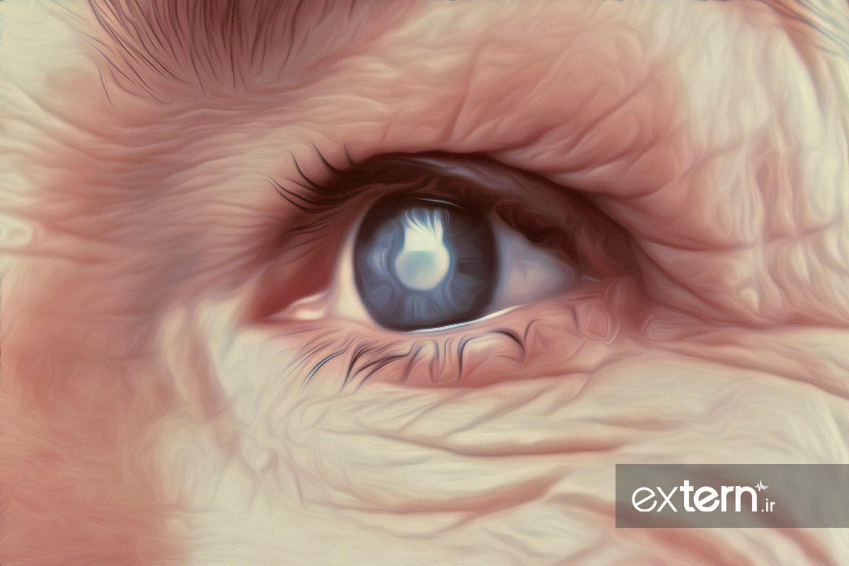 بیماری چشم در دیابت یا رتینوپاتی دیابتی