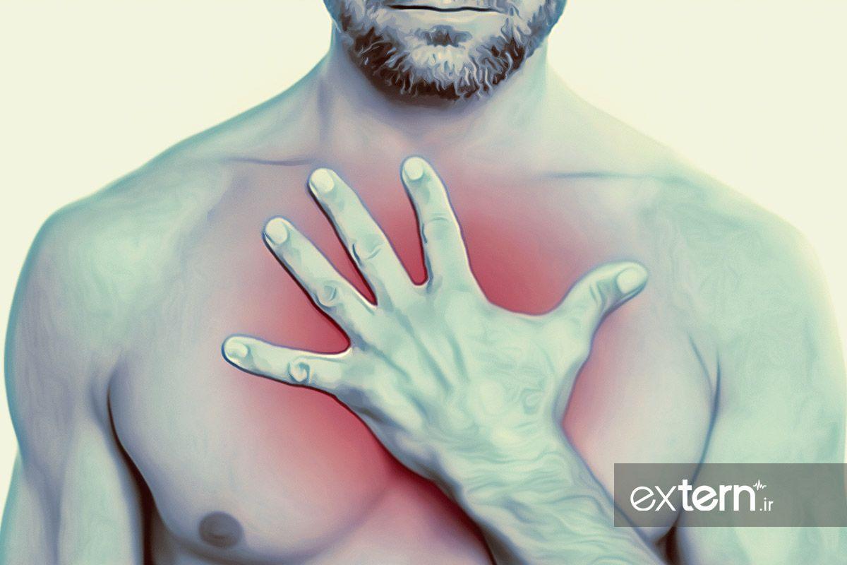 اسپاسم منتشر مری و درد قفسه سینه