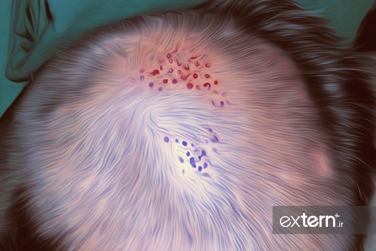 کاشت مو در لیکن پلانوپیلاریس
