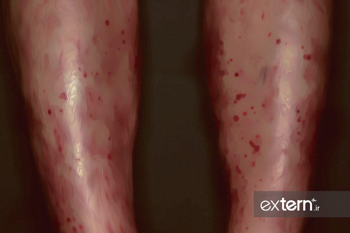 میکروسکوپیک پلی آنژیت با پورپورا روی پا