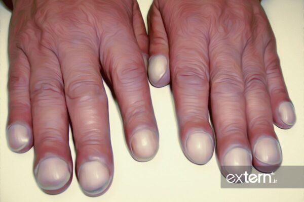 کلابینگ ناخن انگشتان در سندرم پوئمز POEMS