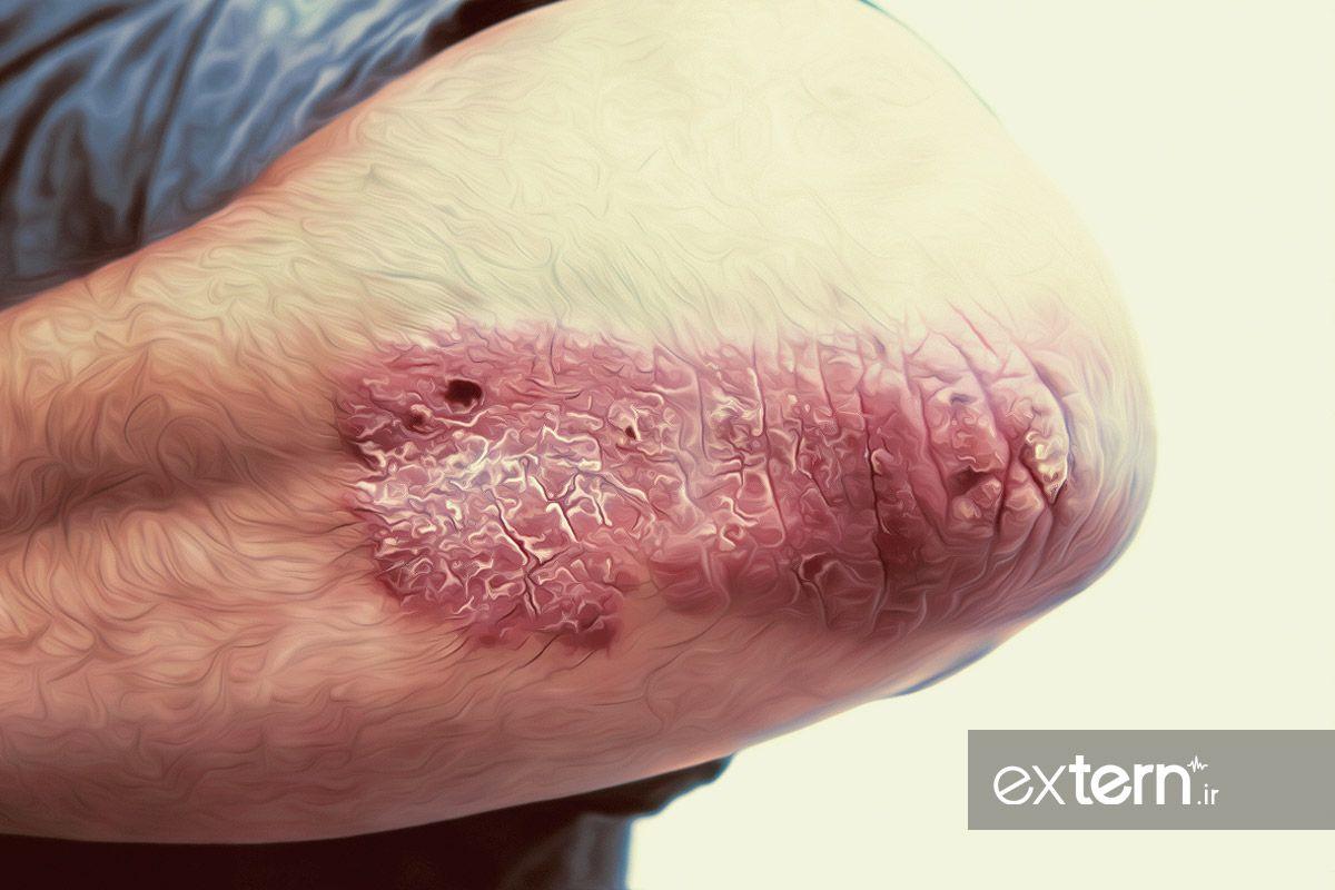 پلاک پوسته ریزی آرنج در بیماری پسوریازیس