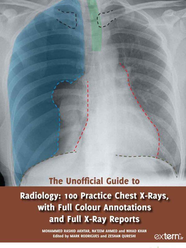 کتاب راهنمای غیررسمی رادیولوژی 100 تمرین تفسیر رادیوگرافی قفسه سینه رنگی با ریپورت 2017 ویرایش اول