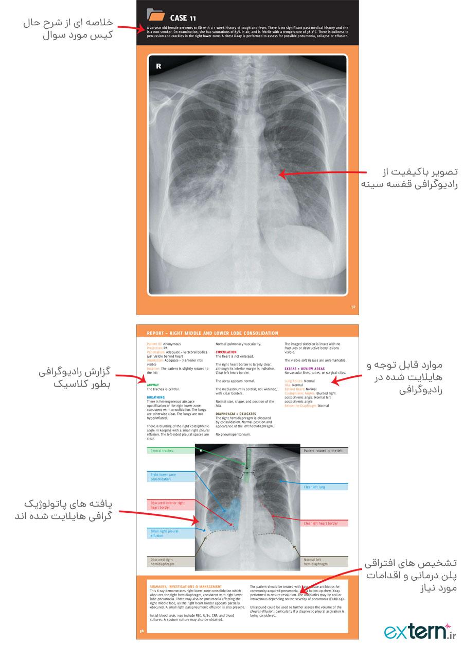 تصویر صفحات کیس تمرینی تفسیر رادیوگرافی قفسه سینه
