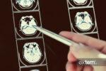 تصویر ام آر آی مغز در بیماری ام اس
