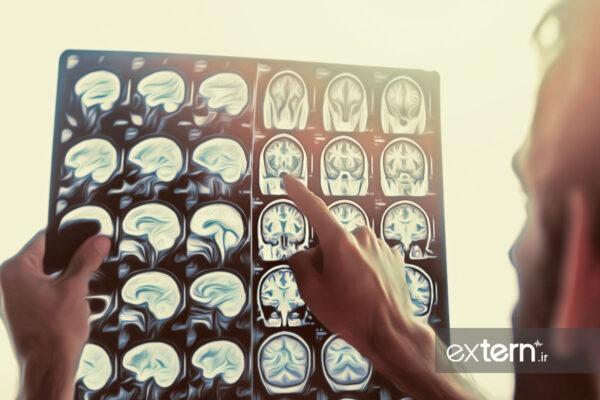 ام آر آی مغز در بیماری ام اس